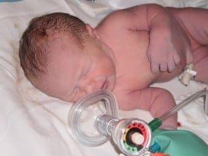 Allison's birth story