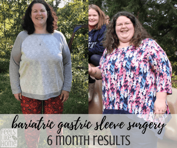 Bariatric gastric sleeve surgery results - This is an update 5 months after gastric sleeve surgery including before and after pictures (or is it before and during?). She is losing weight quickly and eating a healthy diet that she can maintain for life!