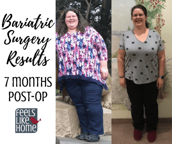 Tara Ziegmont before and after bariatric gastric sleeve surgery